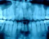 Oncologistas alertam para incidência 3 vezes maior nesta década dos casos de câncer de boca e garganta ligados ao HPV